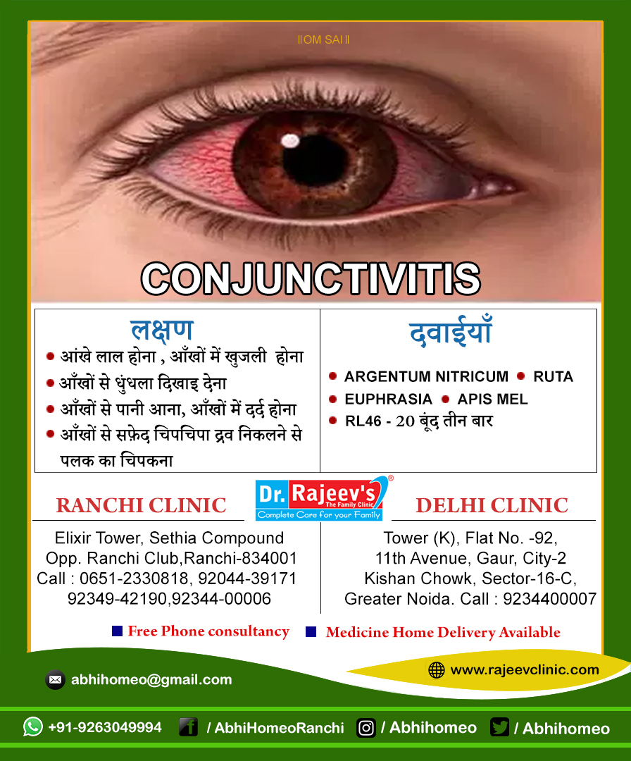 Homeopathy Treatment for Conjunctivitis in Ranchi/Delhi