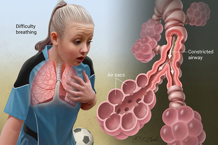 HOMEOPATHY IS EFFECTIVE FOR ASTHMA